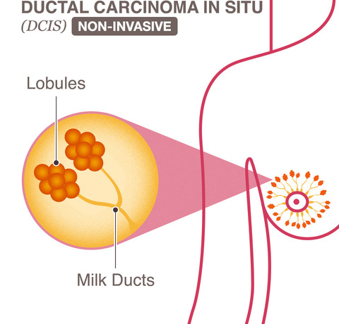 breast cancer ductal carcinoma in situ dcis