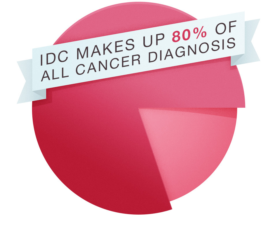 What Is IDC (Invasive Ductal Carcinoma)