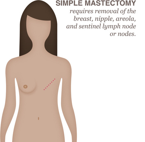 breast cancer treatment mastectomy
