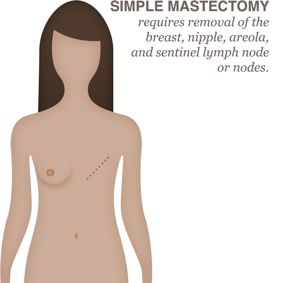 mastectomy Breast cancer following