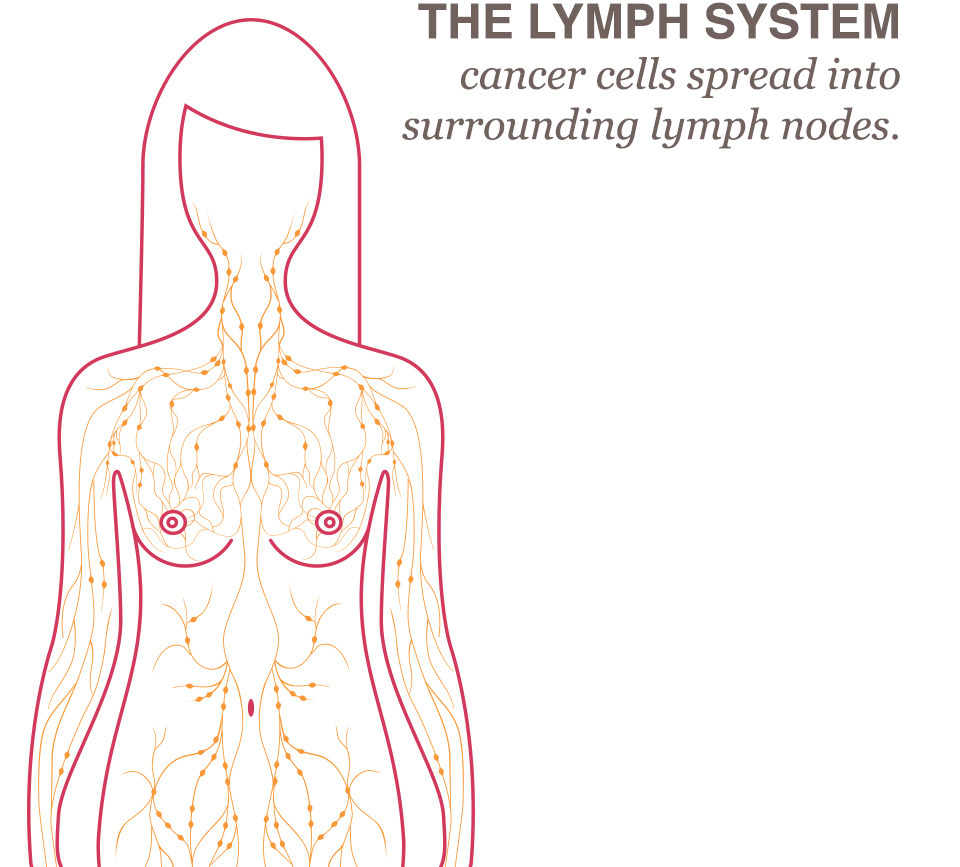 Breast lymph cancer