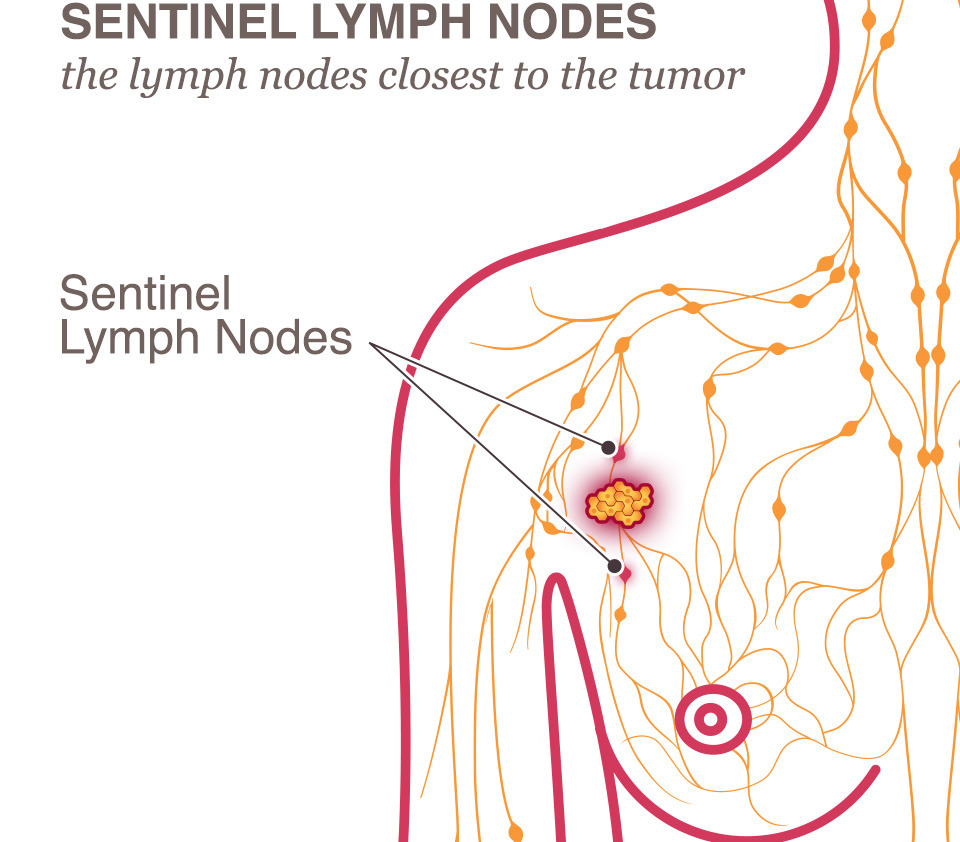 Lymph node removal for breast cancer