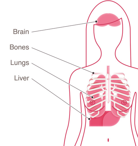 breast cancer type metastatic organs