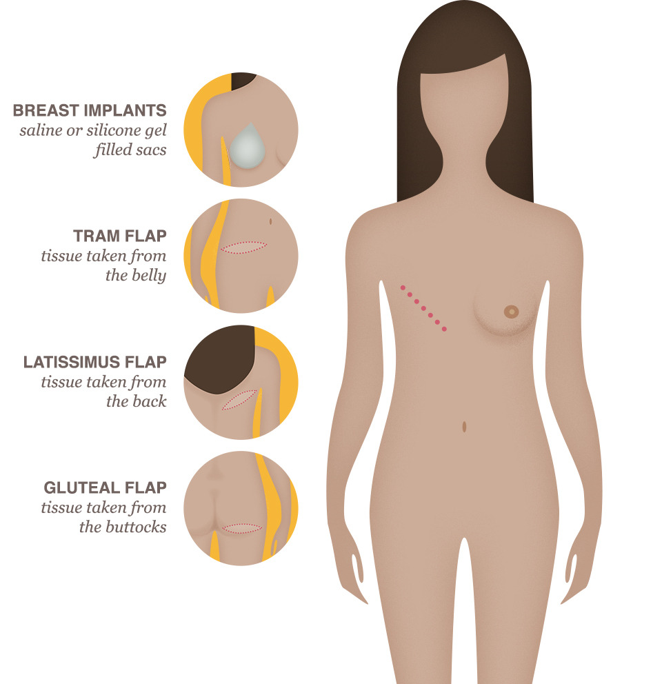 Used in breast reconstruction