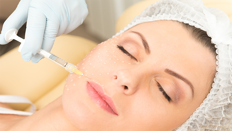 aplicacao preenchimento facial