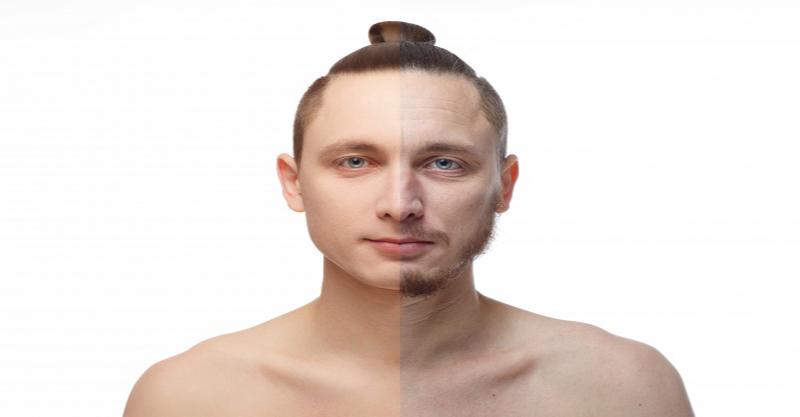 homem com e sem barba