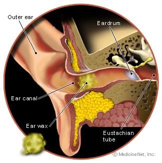Earwax Image
