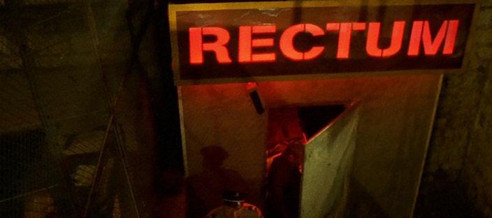 irreversible-rectum