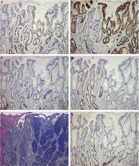 Figure 1: Immunohistochemistry staining of MUC2 (a), MUC5AC (b), MUC6 (c), CDX2 (d) and Ki67 (f) and ABPAS staining (e) in a focus of complete IM (left part) and an adjacent focus of incomplete IM (right part). Besides the presence of MUC2-positive goblet cells, incomplete IM expressed gastric mucins (MUC5AC in almost all glands and Muc6 in several deeper glands) in goblet cells and columnar cells, while complete IM only expressed MUC5AC in few goblet cells but not in the absorptive cells. The CDX2 expression was significantly decreased in the incomplete IM than that in complete IM.
