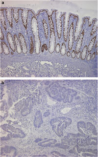 Figure 3: The CDX2 expression in colon cancer (b) was significantly decreased compared with that in normal colon (a). The tissues in A and B were from the same patient.