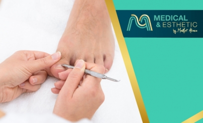 Hasta 79% OFF: Pedicure Médico