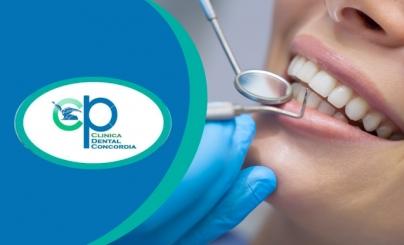 Hasta 84% OFF: Servicios Dentales