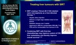 Debate: Is radioembolization of CRC liver-limited metastases ready for first-line? - Yes