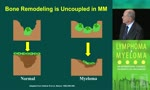 Advances in the Biology and Treatment of Myeloma Bone Disease