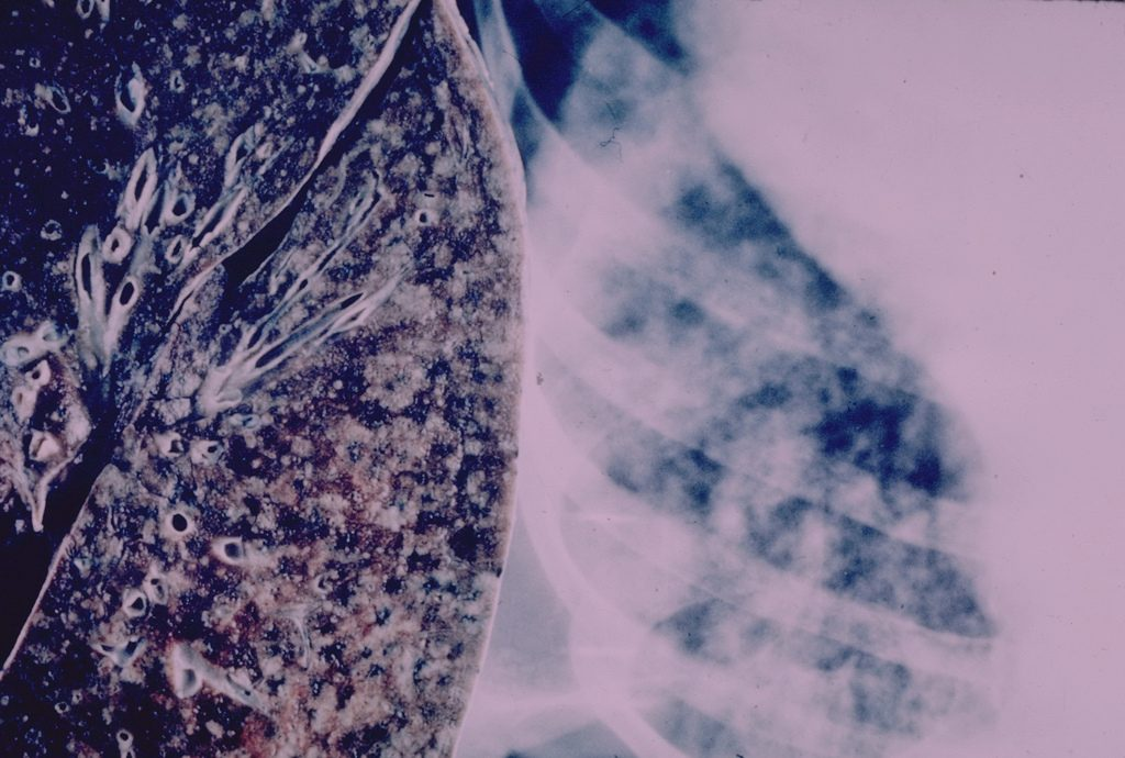 A lung with miliary tuberculosis. (Photo credit: Yale Rosen/Flickr)