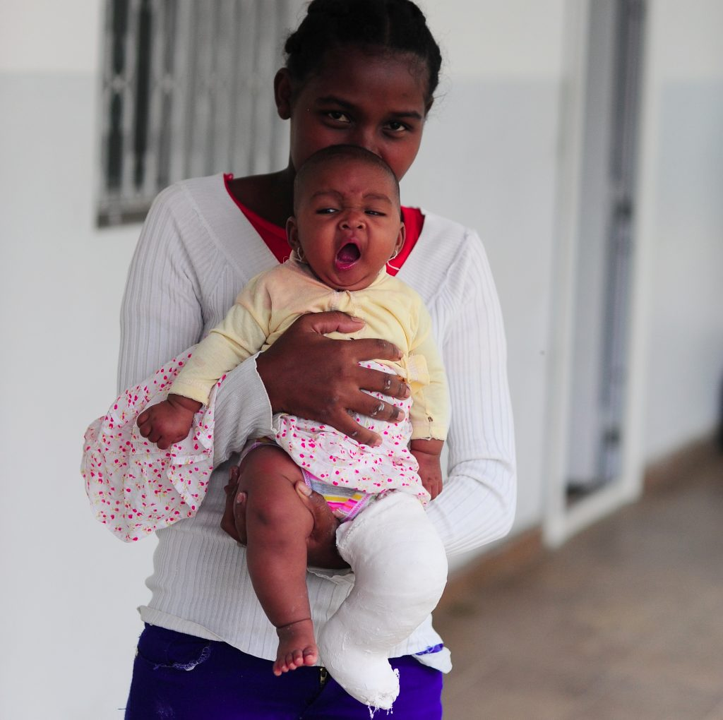 Lienne holds Sania, who wears a cast to treat clubfoot. (Photo credit: MiracleFeet)