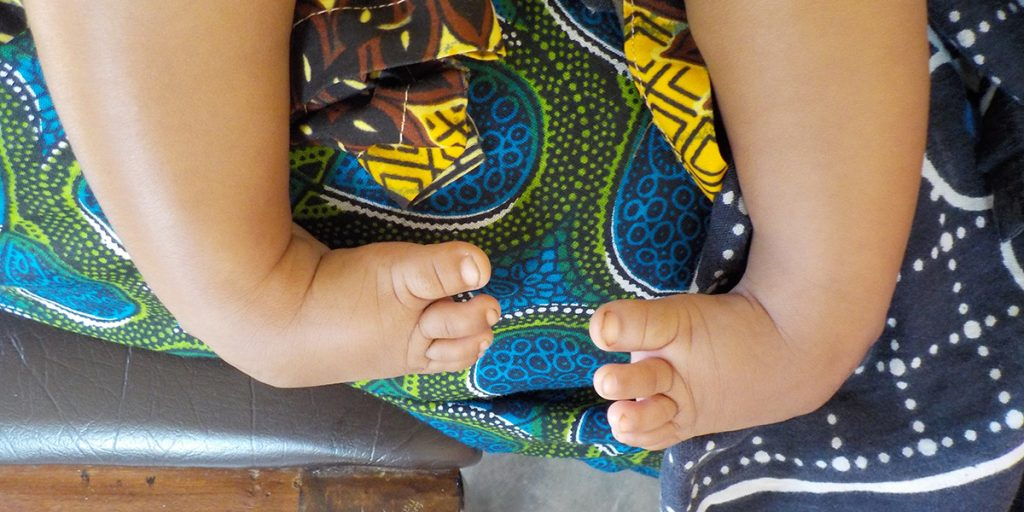A baby with untreated clubfoot. (Photo credit: MiracleFeet)