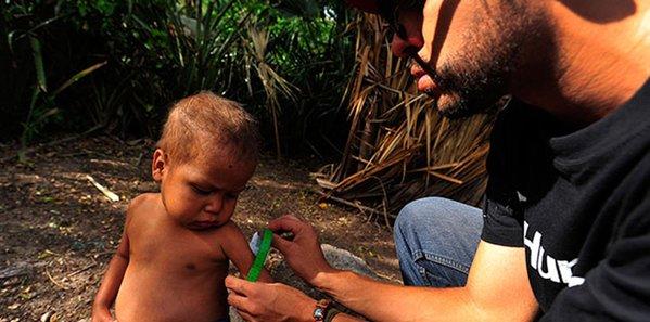 Journée mondiale de la santé : la sous-nutrition est un problème de santé publique !