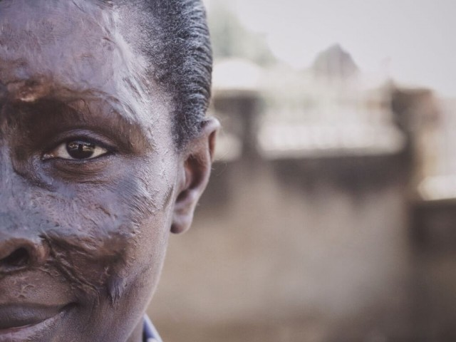 She survived an acid attack. Now Gloria supports victims and lobbies to end the violence.