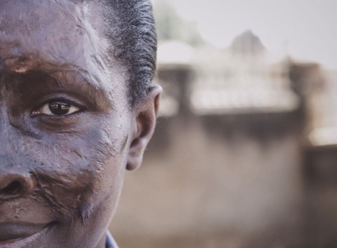 She survived an acid attack. Now Gloria supports victims and lobbies to end the violence