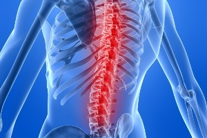 back pain recurrence