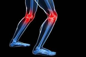 5 Ways to Strengthen Your Knees