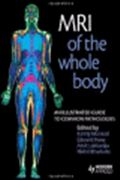 image of MRI of the Whole Body: An Illustrated Guide To Common Pathologies