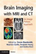 image of Brain Imaging with MRI and CT