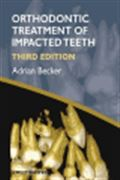image of Orthodontic Treatment of Impacted Teeth