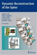 image of Dynamic Reconstruction of the Spine