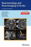 image of Neurosonology and Neuroimaging of Stroke: A Comprehensive Reference