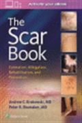 image of Scar Book, The: Formation, Mitigation, Rehabilitation, and Prevention