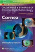 image of Cornea