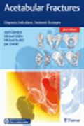 image of Acetabular Fractures: Diagnosis, Indications, Treatment Strategies