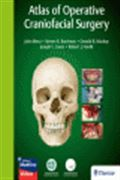 image of Atlas of Operative Craniofacial Surgery