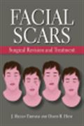 image of Facial Scars: Surgical Revision and Treatment