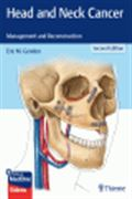 image of Head and Neck Cancer: Management and Reconstruction