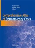 image of Comprehensive Atlas of Dermatoscopy Cases