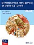 image of Comprehensive Management of Skull Base Tumors