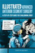 image of Illustrated Advanced Anterior Segment Surgery