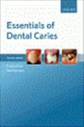image of Essentials of Dental Caries