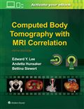 image of Computed Body Tomography with MRI Correlation