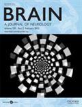 image of Brain