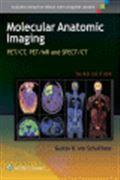image of Molecular Anatomic Imaging: PET/CT, PET/MR and SPECT/CT