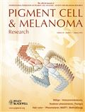 image of Pigment Cell & Melanoma Research