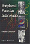 image of Peripheral Vascular Interventions