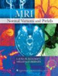 image of MRI: Normal Variants and Pitfalls