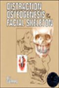 image of Distraction Osteogenesis of the Facial Skeleton