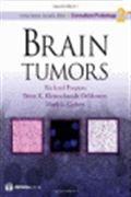 image of Brain Tumors