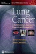 image of Lung Cancer: A Multidisciplinary Approach to Diagnosis and Management